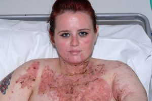 Young Woman Scarred For Life After What Her Muslim Boyfriend Paid Two Thugs To Do [PHOTOS]